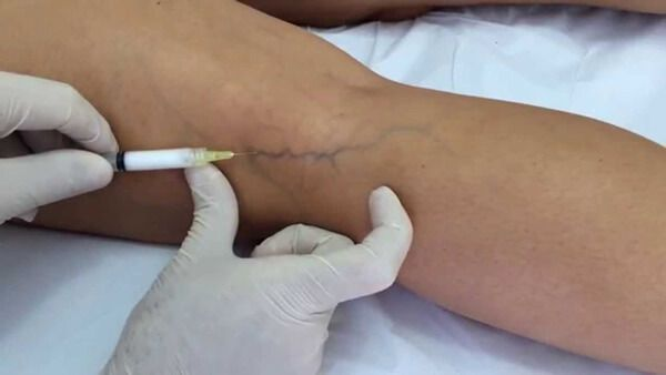 Treatments for varicose veins (VI): sclerotherapy